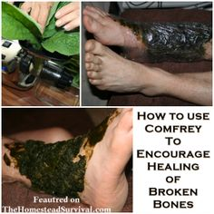 How to use Comfrey to Heal Broken Bones - The Homestead Survival - Homesteading Herbal Medicine