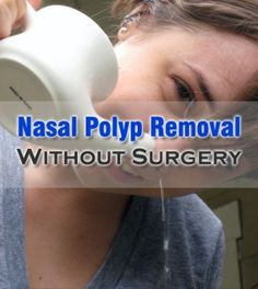 Effective remedies for nasal polyp removal without surgery best essential oils for nasal polyps Group Health, Health Tips, Sinus Polyps, Sinus Problems, Allergy Remedies, Homeopathic Medicine, Sinus Infection, Best Essential Oils