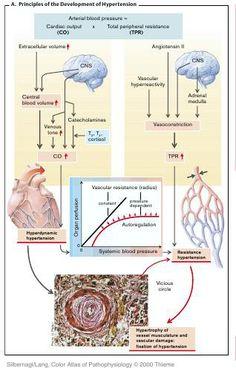 pathophysiology of graves disease pdf