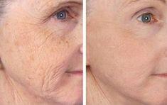 A legmélyebb ráncok is eltűnnek ezzel a házi készítésű krémmel - Blikk Rúzs Neck Wrinkles, Under Eye Wrinkles, Prevent Wrinkles, Facial Treatment, Skin Treatments, Laser Skin Tightening, Home Remedies For Wrinkles, Thigh Workouts, Beauty Hacks
