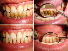 Dogal Yöntemlerle Diş Temizliği - Bilgi Deryası