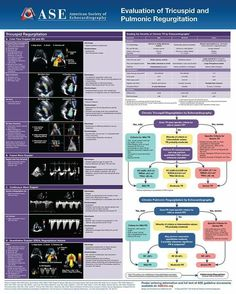 Cardiac Sonography, Ultrasound Sonography, Mitral Valve Regurgitation, Cardiac Nursing, Med School, Medical, Heart Echo, Labs, Health