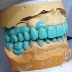 Dental Life, Dental Art, Dental Teeth, Dental Lab Technician, Dental Anatomy, 21st Birthday Cakes, Dental Laboratory, Tooth Pain, Dental Office Design