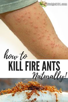 organic fire ant killer \ organic ant killer , organic ant killer for garden , organic fire ant killer Ants In Garden, Kill Fire Ants, Fire Ant Bites, Homemade Ant Killer, Pest Control, Bug Control, Dirt Cheap, Natural Instinct, Natural Cleaning Products