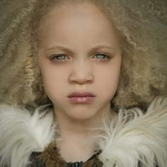 Ava Clarke, a Gorgeous Black Girl with Albinism, Just Walked the VMA Red Carpet With Beyoncé My Black Is Beautiful, Beautiful Eyes, Beautiful Children, Beautiful Babies, Pretty People, Beautiful People, Albino Girl, Unique Faces, Portraits