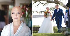 This Bride With Alopecia Refused To Wear A Wig On Her Wedding Day