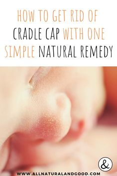 Although unsightly, it is fairly easy to get rid of without using any harsh soaps or products that may irritate baby's delicate and sensitive skin. You can get rid of your baby's cradle cap once and for all with this one simple and natural remedy! Anxiety Remedies, Sleep Remedies, Cradle Cap Remedies, Baby Craddle, Baby Cradle Cap, Essential Oils For Babies, Baby Supplies, Free Baby Stuff, How To Get Rid