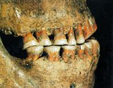 """Part of Shanidar 1's skull, showing the unusual wear on his front teeth. ... That 'Nandy' [as they called him at the dig] made himself useful around the hearth (two hearths were found very close to him) is evidenced by the unusual wear on his front teeth. It presumably indicates that in lieu of a right arm, he used his jaws for grasping, while manipulating with his good left arm and hand."" Good description of the implications of these disabilities at the click-through."