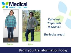 Congratulations an amazing 75 lbs., Katie! She shares more awesome tips to her success and her story. ‪#‎ItFits‬ ‪#‎WeightLoss‬