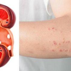 Als je nieren in gevaar zijn, zal je lichaam je deze 8 signalen geven!