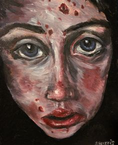 Original Large Self-Portrait Painting Skin defects  Anxiety