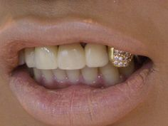 ❀buddha of the butt❀ Diamond Grillz, Diamond Teeth, Rihanna Lyrics, Tooth Gem, Gold Tooth Cap, Gold Grill, Gold Teeth, White Teeth, Swagg