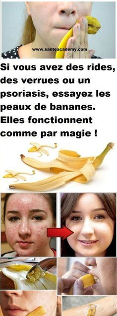 If you have wrinkles, warts or psoriasis, try banana peels! Vitamins For Kids, Psoriasis Cure, Natural Health Tips, Moisturizer For Dry Skin, Atkins Diet, Aging Cream, Warts, Skin Treatments, Plant Based Recipes