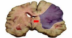 Udar mózgu można rozpoznać po pewnych reakcjach naszego organizmu. Dzięki temu możesz szybko zareagować i uniknąć śmiertelnej dolegliwości.