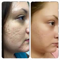 Nerium AD helps with acne scars too!