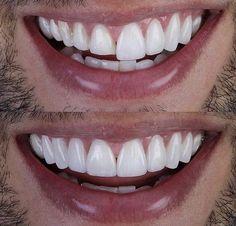 Dental veneer prep and final veneer cementation Veneers Teeth, Dental Veneers, Dental Health, Dental Care, Lente Dental, Perfect Smile Teeth, Cute Tooth, Beautiful Teeth, Porcelain Veneers