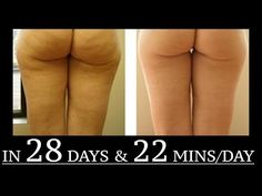 Cellulite Exercises Or Cellulite Massage Or Cellulite Diet? - Great Share With You - YouTube