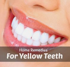 Home Remedies for Yellow Teeth | Medi Tricks