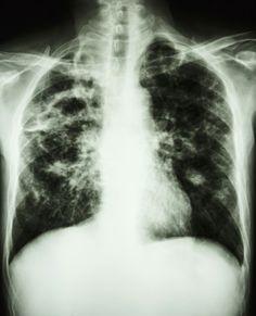 Un equipo científico internacional desarrolla un nuevo antibiótico contra la tuberculosis
