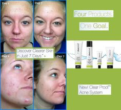Just week  of using Clear Proof Acne System...Guaranteed !!! Contact me for details. www.marykay.com/hgjoen