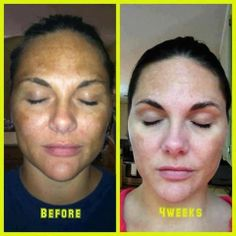 What tanning does, and what you can do to turn it around. Dark Spots and skin renewal. Reverse Rodan + Fields.  Carriecarraro.myrandf.com