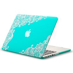 "Kuzy - Retina 13-inch Lace TEAL HOT BLUE Rubberized Hard Case for MacBook Pro 13.3"" with Retina Display A1502 / A1425 (NEWEST VERSION) Shell Cover - Lace TEAL: Computers & Accessories"
