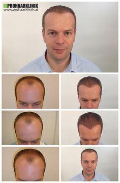 http://www.prohaarklinik.at/haartransplantation-vorher-nachher-bilder/  Haartransplantation Videos - PROHAARKLINIK  Thomas hatte 0% Haare in seinem Tempel Zonen und einige Haare in der Mitte seiner Stirnfläche verlassen. Die Behandlung wurde in zwei Tagen durchgeführt, und die Ergebnisse, die Sie sehen können, sind 11 Monate nach seinem Haartransplantation entnommen. Natural Hair Transplantation von PROHAARKLINIK.