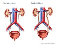 Duplex Kidney Illustration