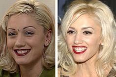 6 shocking Celeb looks Gwen Stefani No Doubt, What Is The Secret, Plastic Surgery, Gossip, Photoshop, Celebs, Random, Pretty, People