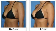 Breast Reduction Houston, TX Breast Augmentation Procedures in Houston Prices and procedures by Dr. Layton who performs hundreds of Breast Augmentation & Breast Implant Replacement. Increase Bust Size, Mommy Makeover, Dermal Fillers, Plastic Surgery, Mobile Wallpaper, Wallpaper Wallpapers, Visit Website, Website Link, Houston Tx
