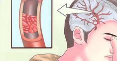 Vem skulle ha trott att bristen på bara ett näringsämne kan ha en så enorm inverkan på den allmänna hälsan? Samhälletsdieter har drastiskt förändrats under åren, vilket har resulterat i en ökning av hälsoproblem som knappast kunde ses tidigare. Brister i vissa näringsämnen har blivit mycket vanliga, magnesium är den vanligaste. Numera har det blivit …