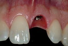 """GenXT Implants in India: """"Get Your New Fixed Teeth Now"""""""