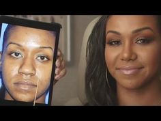 Ethnic Rhinoplasty Before and After Transformation Patient Story Nostril Reduction, Ethnic Rhinoplasty, Rhinoplasty Before And After, Cosmetic Procedures, Plastic Surgery, Beauty Secrets, Beauty Skin, Facial, Skin Care