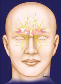 Supraorbital nerves causing pain behind eyes