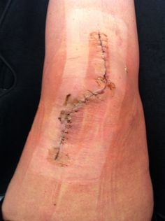 d339640461 MPFL reconstruction & Trochleoplasty re-done 18 days post op dressings  removed.