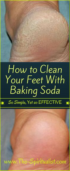 So Simple, Yet so EFFECTIVE: How to Clean Your Feet With Baking Soda