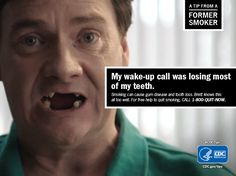 """""""My wake-up call was losing most of my teeth."""" Brett had most of his teeth removed, including 16 during one surgery because of gum disease caused by smoking. It finally motivated him to quit for good. Harmful Effects Of Smoking, Smoking Causes, Anti Smoking, Ways To Stop Smoking, Help Quit Smoking, Giving Up Smoking, Smoking Campaigns, Quit Smoking Motivation, Smoking Addiction"""