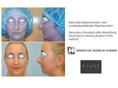 Vor und nach operativer Nasenkorrektur Wels, Linz