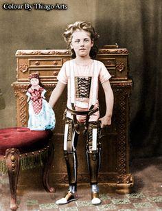 Artificial legs in 1898