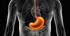 Acid reflux is believed to be triggered by having too much acid in the stomach.