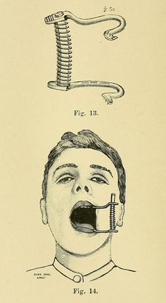 """Down Brothers' Gag"" ~ ""It is perfectly self-sustaining, owing to the presence of small sharp teeth which bite into the gum behind the molars."", 1900"