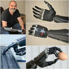 machanical arm/prothesis In newer and more improved designs, after employing hydraulics, carbon fiber, mechanical linkages, motors, computer microprocessors, and innovative combinations of these technologies to give more control to the user.