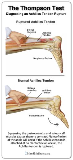 The Thompson Test is used to determine if the Achilles tendon is ruptured. When the calf muscles are squeezed, the foot should go into plantar flexion if the Achilles tendon is intact. #thompsontest #achillesrupture