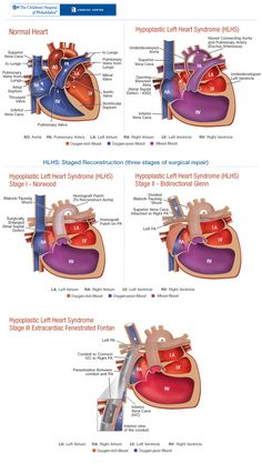 Description of the 3 Stages of repair for a hypoplastic left heart.