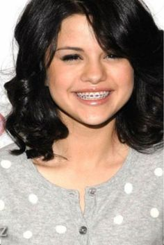 Selena Gomez with braces