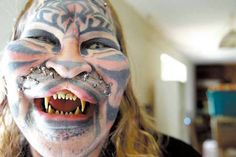 "Dennis Avner, also known by ""Catman"" or his native american name of ""Stalking Cat"", undergone incredible extensive surgery in order to look like his totem animal, the tiger. Modifications include extensive tattooing, transdermal implants to allow whiskers to be worn, subdermal implants to change the shape of the face and the filing and shaping of the teeth to make them look more like a tiger's."