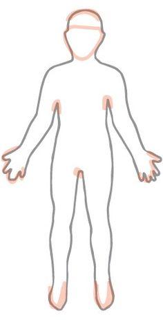 Learn about plaque psoriasis, guttate psoriasis, inverse psoriasis, and pustular psoriasis | National Psoriasis Foundation