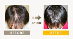 AGA治療薬を服用してましたが、まったく効果ありませんでした。知人の紹介で来店。髪が全体的に太くなって抜け毛も減りました。 自然に増えていくので周りから不自然な印象はもたれませんでした。