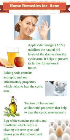 We have lots of acne home remedies at hand, yet we know so little about them. Thanks to the Internet, we can now learn how to fight acne with simple natural Pimples Remedies, Natural Acne Remedies, Home Remedies For Acne, Beauty Hacks For Teens, Tips & Tricks, How To Get Rid Of Acne, Acne Skin, Oily Skin, Natural Remedies