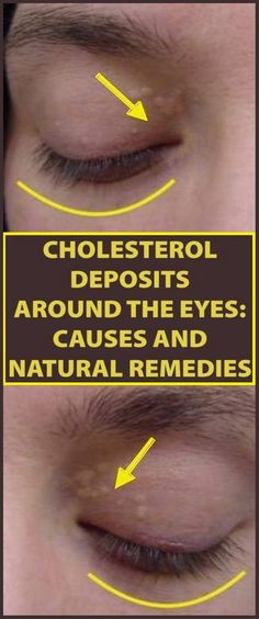 How to Remove the Cholesterol Deposits Around Your Eyes
